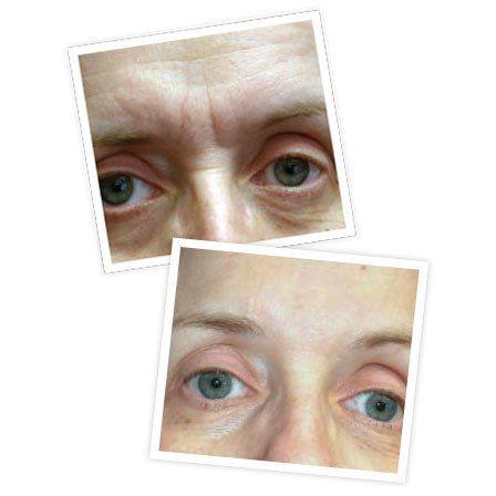 Deep Wrinkle Treatment   Frownies