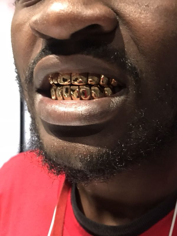 Where Can I Get Permanent Gold Teeth : where, permanent, teeth, Pullout, Grillz, Permanent, Hollywood,, OfferUp, Grillz,, Gold,, Hollywood