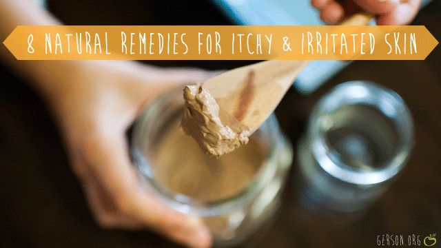 Natural remedies for itchy and irritated skin. Great tips