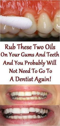Teeth cleaning #teethcleaning