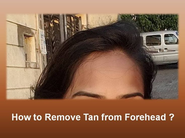 How to Remove Tan From Forehead : Simple Remedies for Glowing!