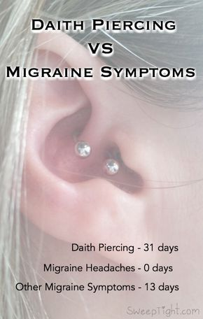The ear piercing for migraines - results after 31 days