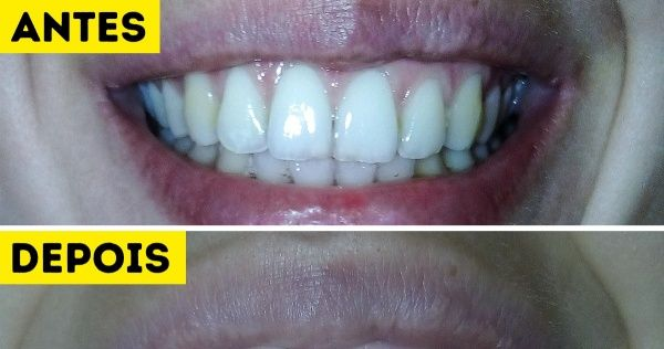 Experimentamos 5 Formas Caseiras De Clarear Os Dentes O
