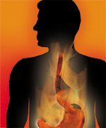How to Manage Symptoms of Gastroesophageal Reflux Disease (GERD) - Life Extension