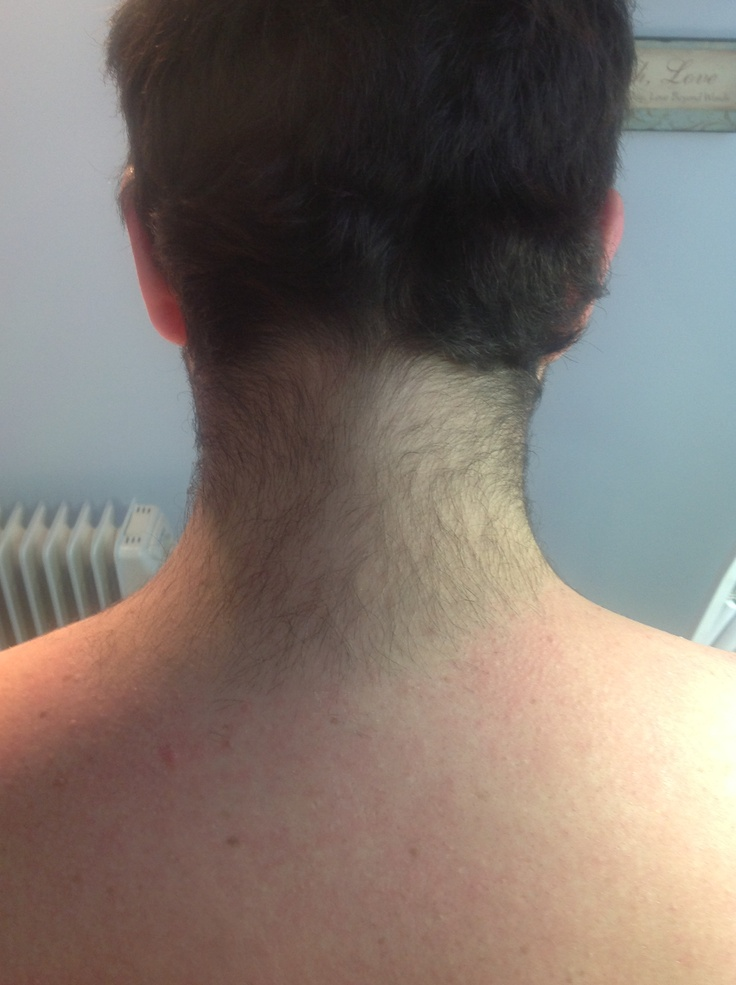Waxing Neck Hair
