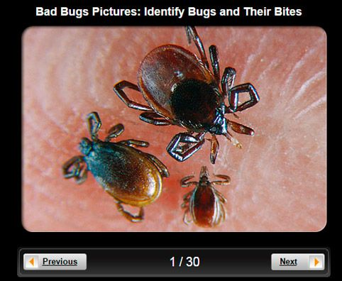 Chiggars.Bad Bugs Pictures Slideshow: Identify Bugs and Their Bites