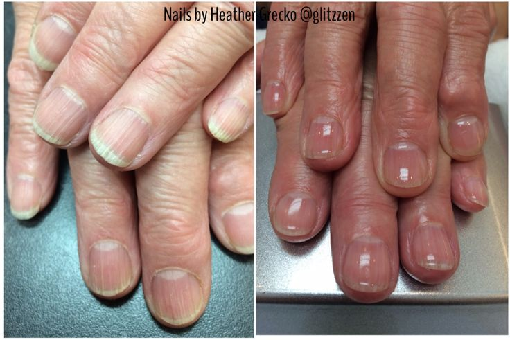 LCN's new Natural Nail Boost Gel. before and after @Heather Grecko for questions or www.lcn.ca