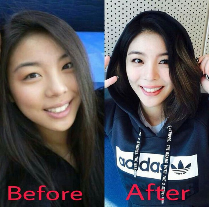 Before and After?? No difference. Ailee <3