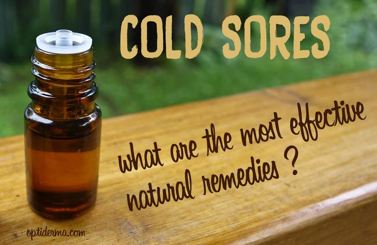 Are you frustrated by an ongoing war with cold sores? In this post, I'll explain to you how to use essential oils for fever blisters + other natural methods