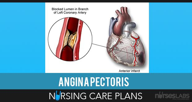 angina pectoris care plan Angina pectoris is a lack of oxygen supply to the heart muscle, due to a reduced blood flow around the heart's blood vessels talk:angina reason.