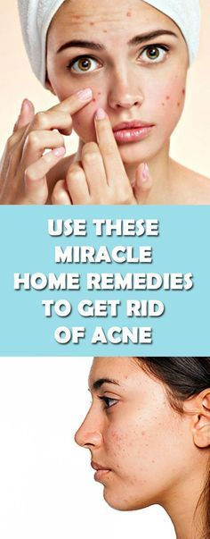 Best Home Remedies To Get Rid Of Acne   Natural ways To get rid of pimples #Acne #Pimples #face #AntiAgingSkinCareDiy