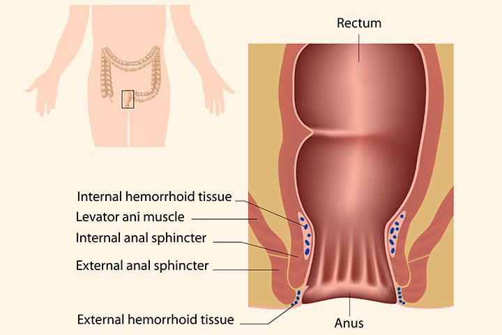 10 Step Checklist for curing hemorrhoids - how to cure hemorrhoids #cure #external #cure#bleeding