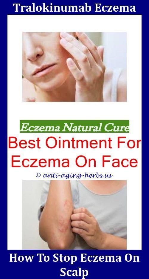 What To Use For Eczema On Neck,reduce eczema redness National Eczema