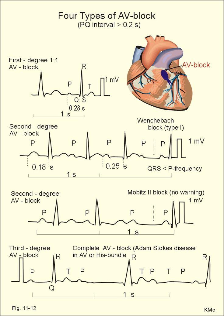 Four types of atrio-ventricular (AV)-block. From above downwards: First-degree AV-block, Second-degree Mobitz I block (Wenchebach), Second-degree Mobitz II block, and Complete AV-block.