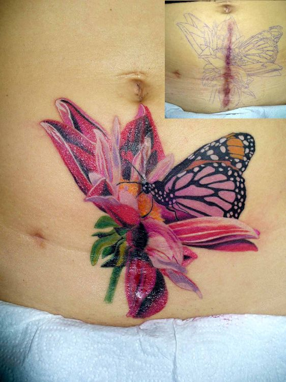 22 best tattoos to cover my scars images on pinterest for Tattoos to cover scars on stomach