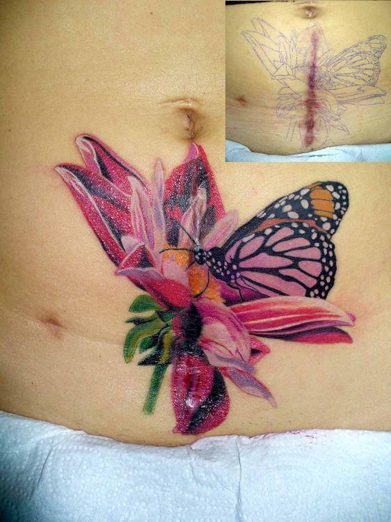 The 25+ best Scar cover tattoo ideas on Pinterest | Kidney ...