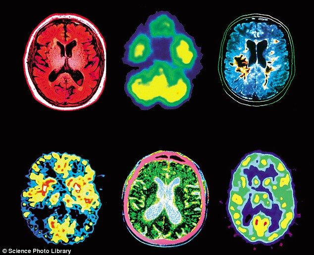 MRI, PET and CT scans of the brains of people affected by (clockwise from top left): Alcoholism, marijuana use, multiple sclerosis, cocaine use, Parkinson's disease, Alzehemier's disease