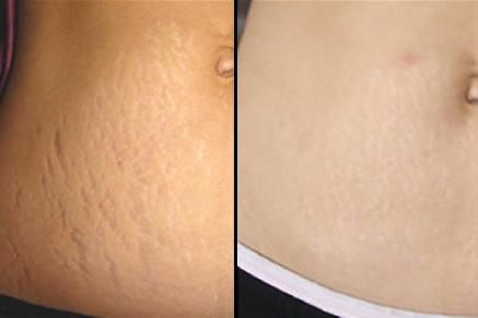 How To Get Rid Of Stretch Marks Naturally... these work but you have to be patient!
