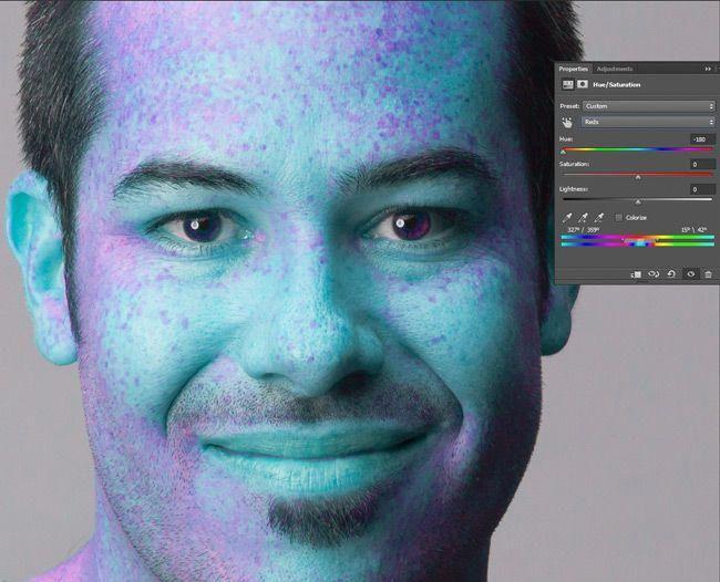 de9e7044966ed65cec934c61947e766a - How To Get Rid Of Red Blotchy Skin In Photoshop