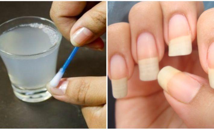 Chcete mať konečne zdravé nechty bez lámania? Stačia vám nato len tieto 4 ingrediencie! | Báječné Ženy