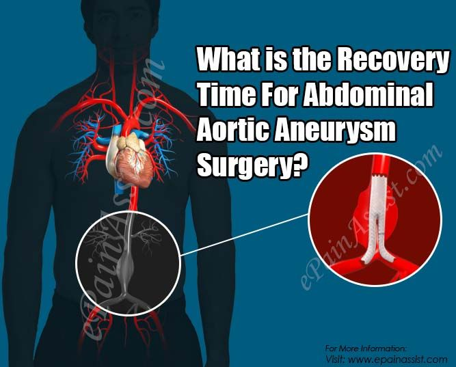 What is the Recovery Time For Abdominal Aortic Aneurysm Surgery?