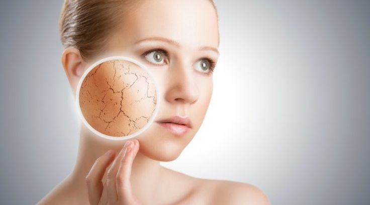 Dry skin How to protect your skin in winter