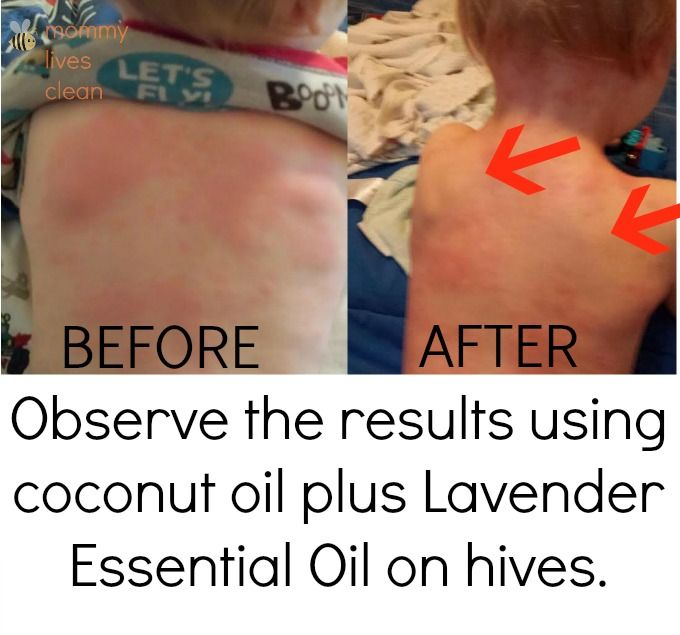 Treating hives in babies with essential oils