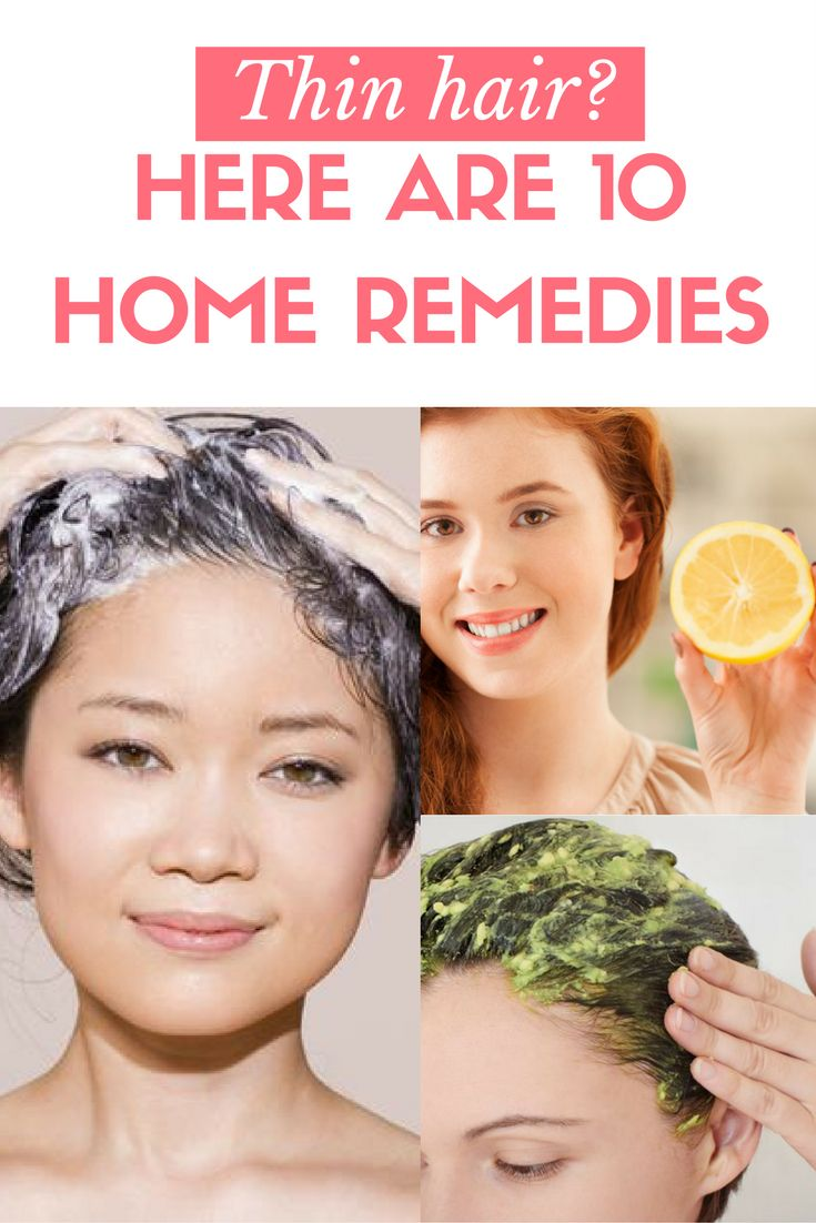25+ best ideas about Thinning hair remedies on Pinterest | Grow ...