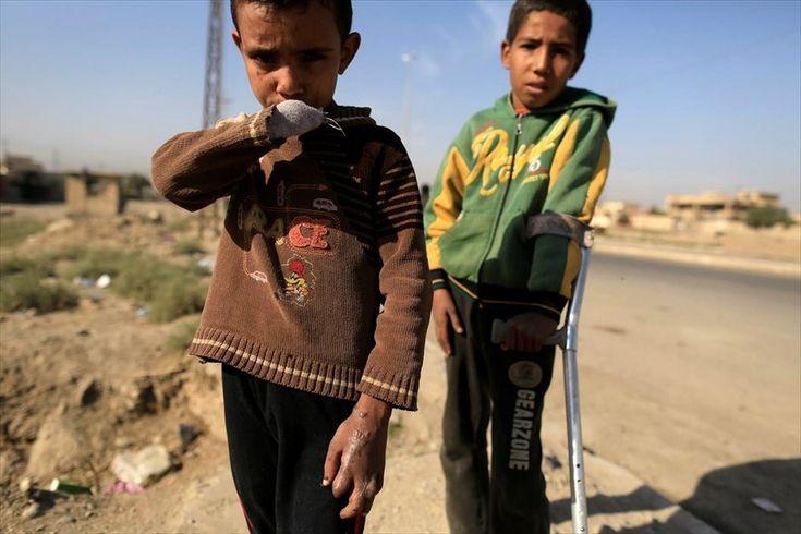 Πρόοδος στημάχη για την ανακατάληψη της Μοσούλης. Ο οκτάχρονος Μπασίρ, που έχασε το χέρι του και το ένα μάτι του όταν έπεσε οβίδα στο σπίτι του, φωτογραφίζεται μαζί με τον μεγαλύτερο αδερφό του Μαχαάλ σε σημείο ελέγχου των ιρακινών δυνάμεων ασφαλείας, ανατολικά της Μοσούλης. Σημαντική πρόοδο στη«μάχη» για την ανακατάληψη τουπροπυργίου του Ισλαμικού Κράτους στο Ιράκ, καταγράφει ο ιρακινός στρατός. Οι δυνάμεις ασφαλείας, οι οποίες υποστηρίζονται αεροπορικώς από τις ΗΠΑ, απέκτησαν σήμερα…