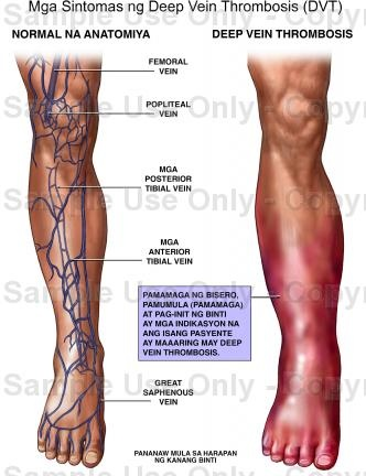 best 25+ great saphenous vein ideas only on pinterest | spider, Cephalic Vein