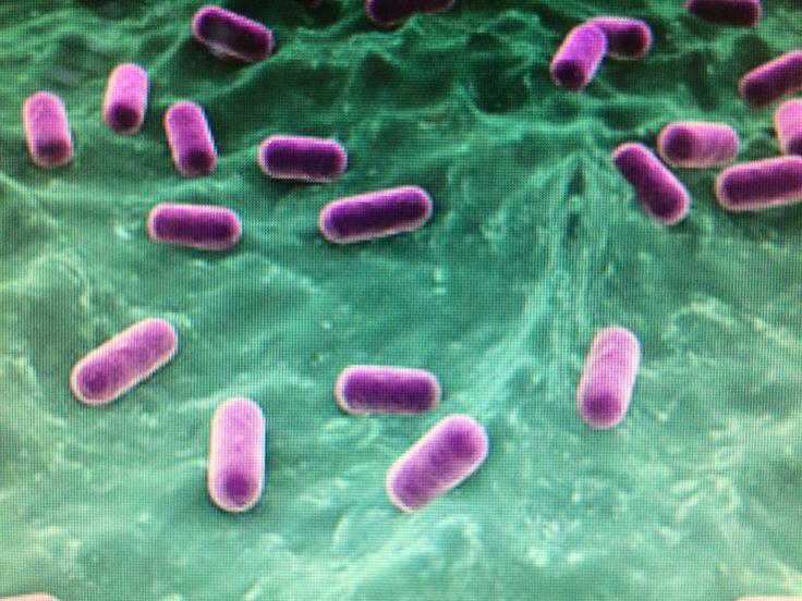 Lactobacillus Probiotic Foods