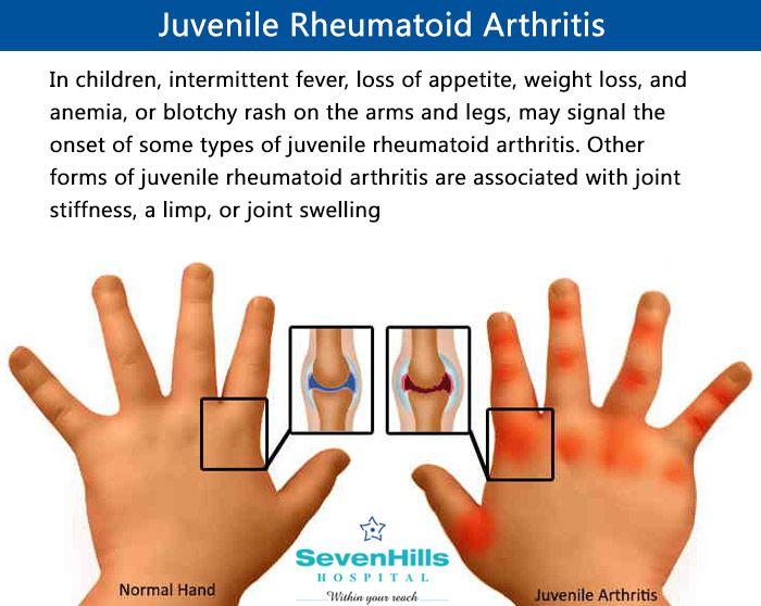 Keep an eye on these #symptoms of Juvenile Rheumatoid Arthritis…