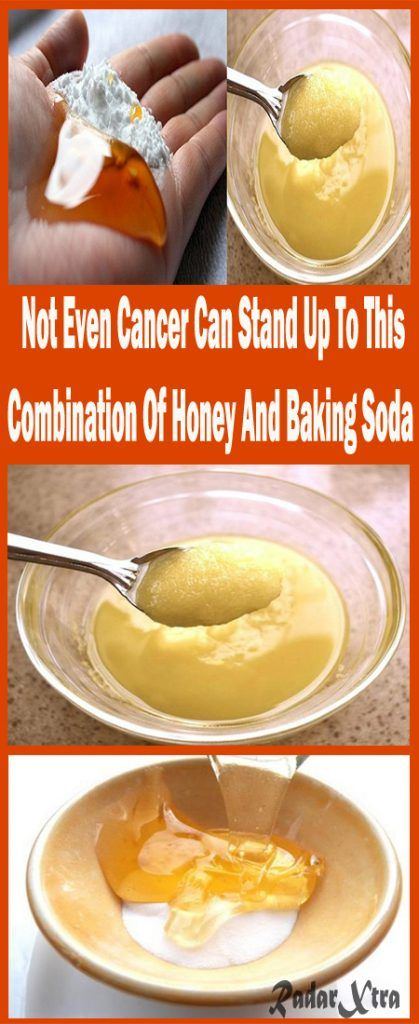 http://www.radarxtra.com/not-even-cancer-can-stand-combination-honey-baking-soda/