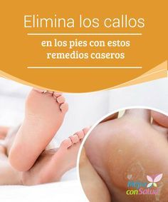 Elimina los callos en los pies con estos remedios caseros Los callos son unas durezas amarillentas que se forman en los pies debido a una presión o fricción excesiva.
