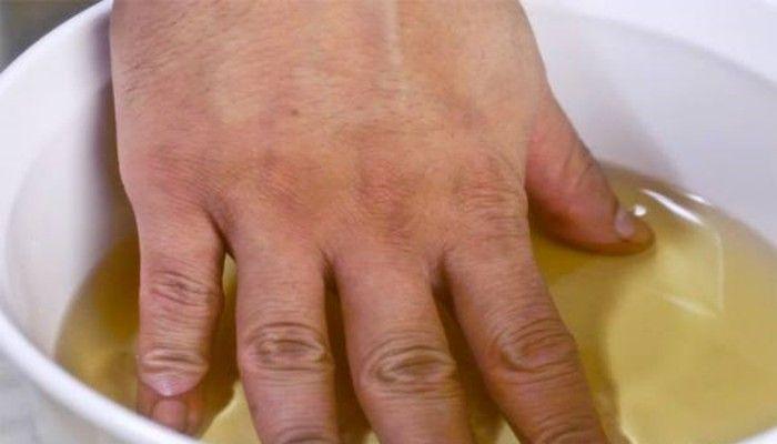 Apple Cider-ocot-Bath-to-Treat-artritída-Bolesti kĺbov Prirodzene