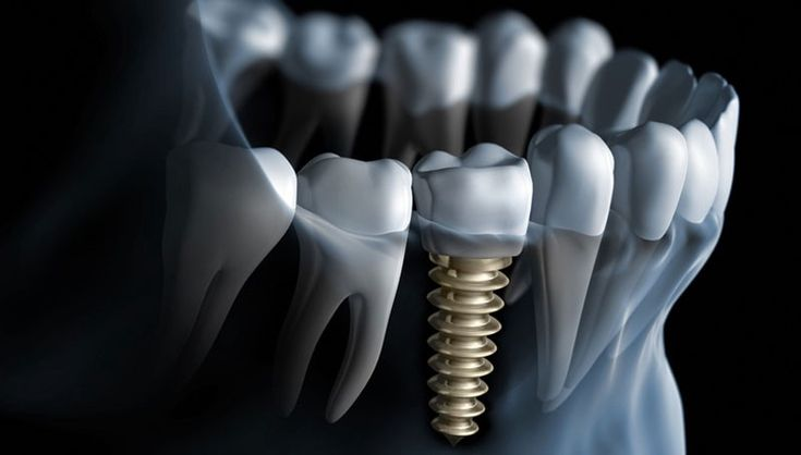 The professionals at Richmond Family Dental suggest that both the methods of connecting crowns to implants serves well depending on the condition of teeth of the patient and the treatment given.