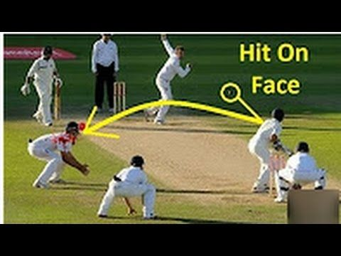 Most Worst Cricket Bouncer injuries in Cricket History || Worst injuries...