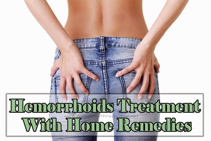119 Best Hemorrhoids External Treatment Images On