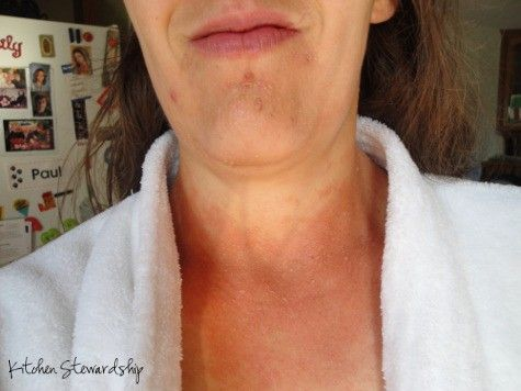 Do you have a candida rash? My lifetime of perfect health was marred by an awful rash that turned out to be candida symptoms - here's what I did to cure it naturally after seeing an M.D. and a Naturopath.