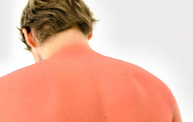 The best home remedies for treating your sunburn