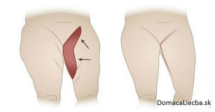 Trápia vás hrubé stehná? Nezúfajte, máme pre vás pár cvikov a ďalších zásad, ktoré vám pomôžu rýchlo sa zbaviť prebytočného tuku.