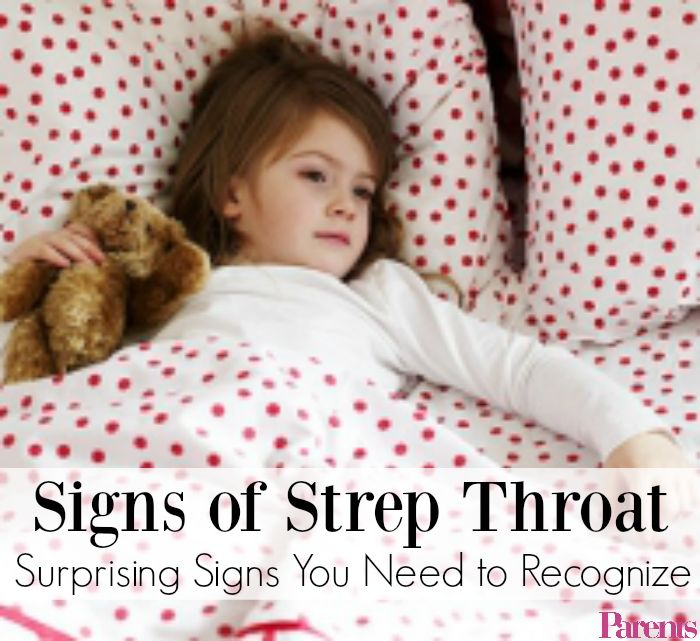 It's likely you already know the tradition signs of strep throat, but sometimes strep bacteria manifests itself in other (strange!) ways. Call an MD in case you recognize any of these surprising signs!
