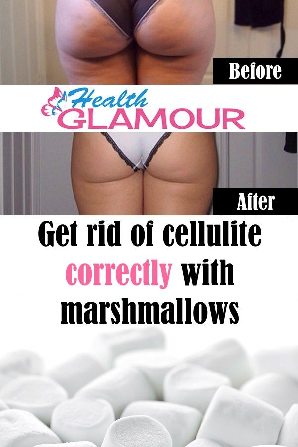 Get rid of cellulite with marshmallows