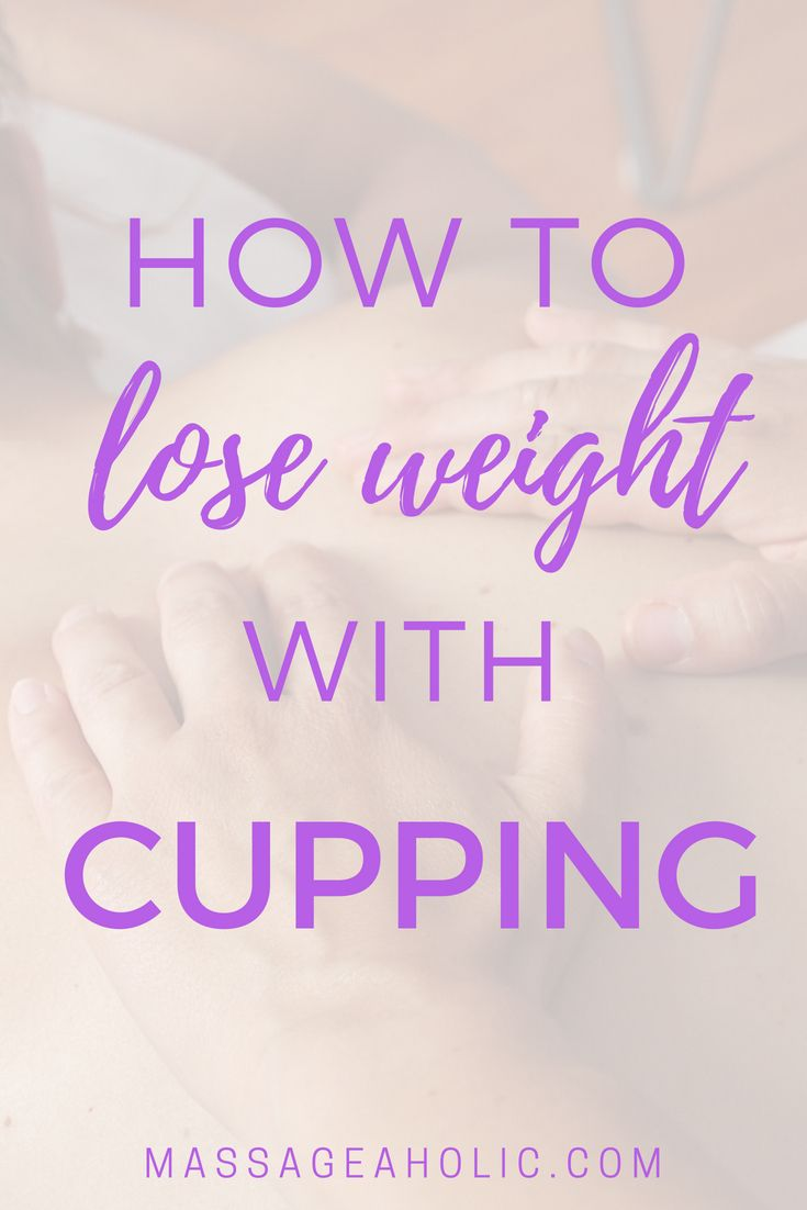 tcm slimming cupping)