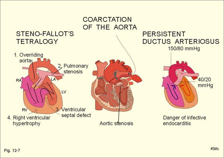 Congenital Heart Defects - Coarctation of the Aorta