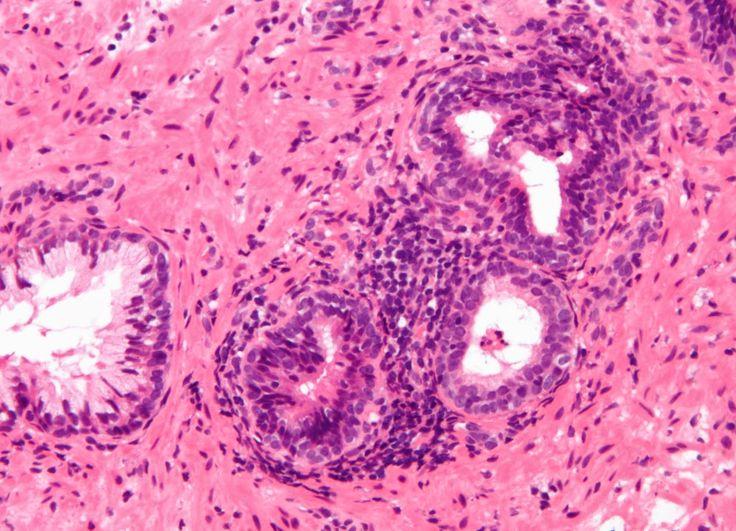PURIFICACION DE AIRE AIRLIFE TE DICE El diagnóstico para la Coccidioidomicosis se realiza mediante la observación de características esférulas que contienen endosporas de hongos en el esputo o por una prueba de anticuerpos. Que nos muestre la presencia de la enfermedad.