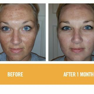 WOW, to think you can start to see incredible results after only 1 month of use!!