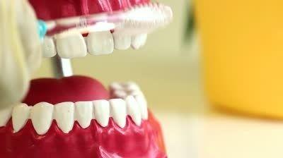 Full mouth Dental Implant Treatment in Australia
