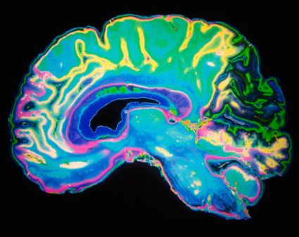 ADHD Brain Scans: How SPECT Imaging Works