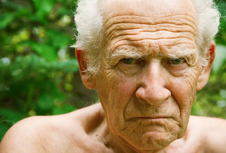 This Might Seem Like Alzheimer's But It's Not – Awakening From Alzheimers